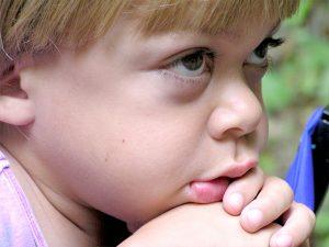 Foto eines Kindes mit MPS I H - Morbus Hurler