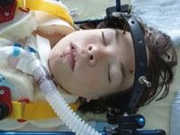 MPS maria operation intensivstation